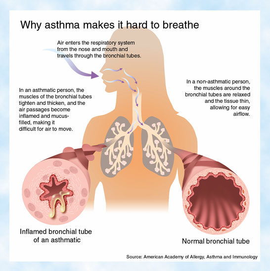 Diagram On Asthmatic Lungs Block And Schematic Diagrams